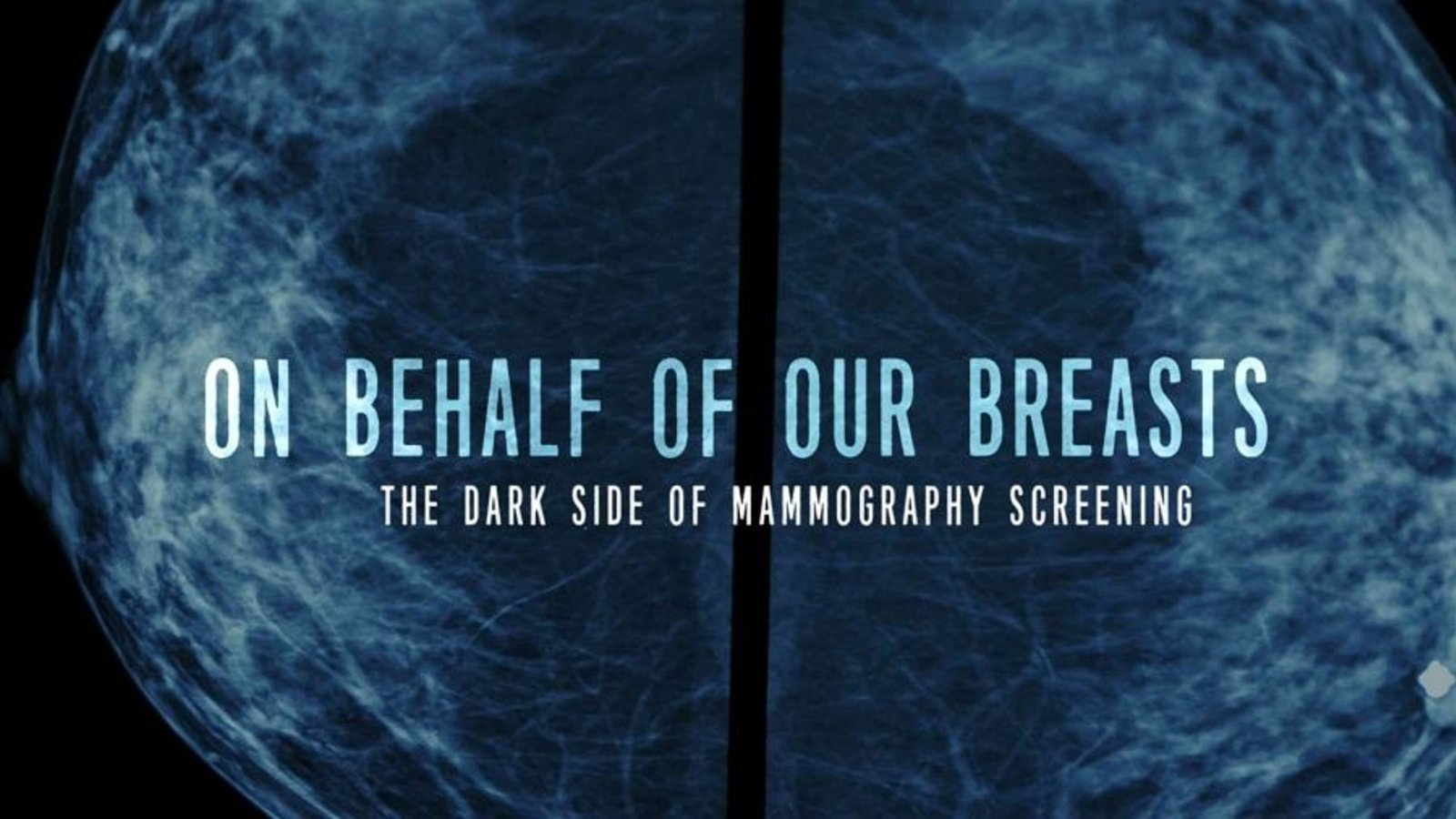 On Behalf of our Breasts - The Dark Side of Screening